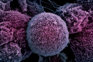 Cancer, the Media, and the Misinterpretation of Studies: A Cautionary Tale